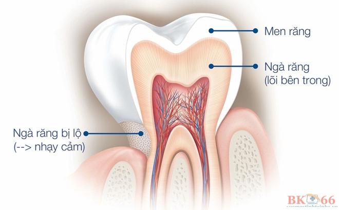Răng nhạy cảm