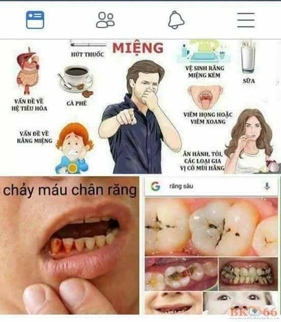 Các vấn đề của răng