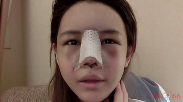 Bầm tím do nâng mũi
