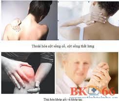 Hình ảnh đau nhức xương khớp